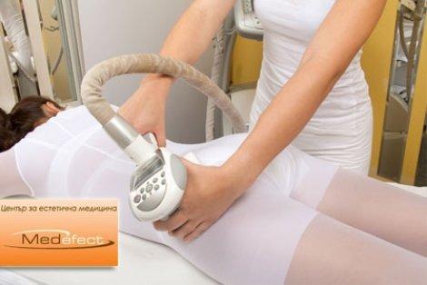 НАЙ-ДОБРА ЦЕНА! Антицелулитен LPG масаж на цяло тяло със Cellu M6 Keymodule 1 от Център за естетична медицина МЕДЕФЕКТ н