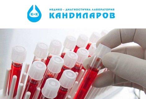 Хормонални изследвания на щитовидната жлеза:  TSH за 9 лв. ИЛИ TSH + FT4 само за 15.90 лв. от СМДЛ Кандиларов